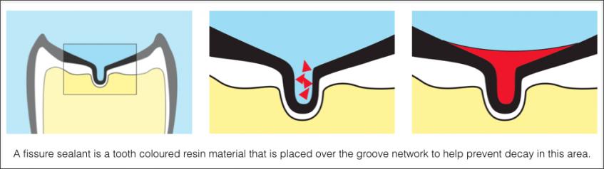 Preventive Sealants